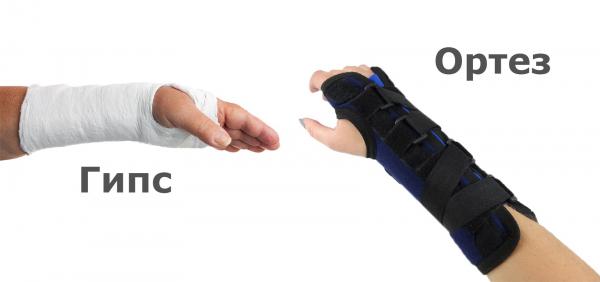 Гипс или ортез: что лучше выбрать при переломе